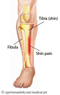 shin-splint1