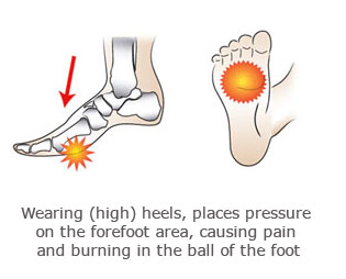 foot pain, mortons neuroma physio ashburton