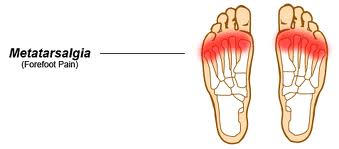 matatarsalgia foot pain physio