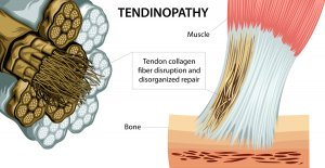 Why your tendon isn't improving   Tendinitis/Tendinopathy